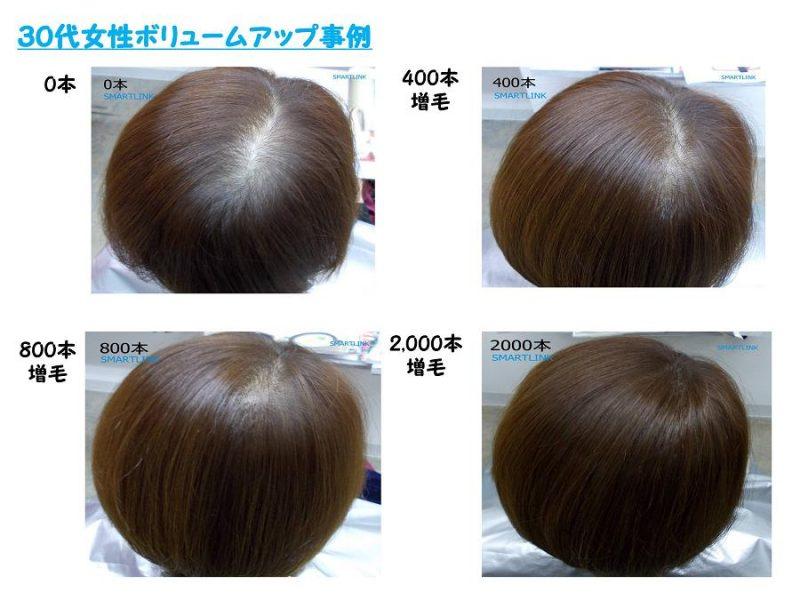 Smartlink_増毛事例30代女性小サイズ